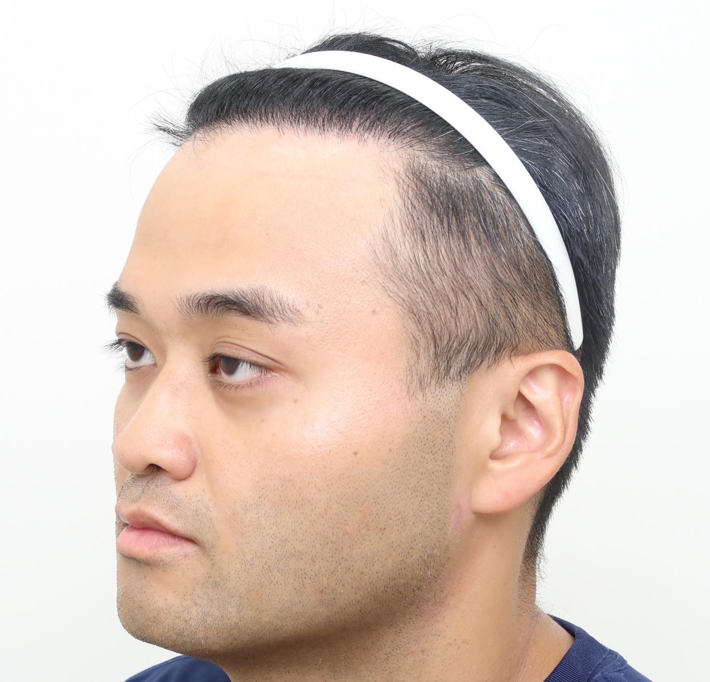 M型禿植髮FUE高密度植髮心得推薦-植髮專家澤林毛髮診所謝宗廷醫師-合併使用柔沛-術後1-2