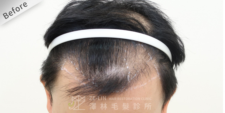M型禿植髮推薦案例心得分享術前11-1