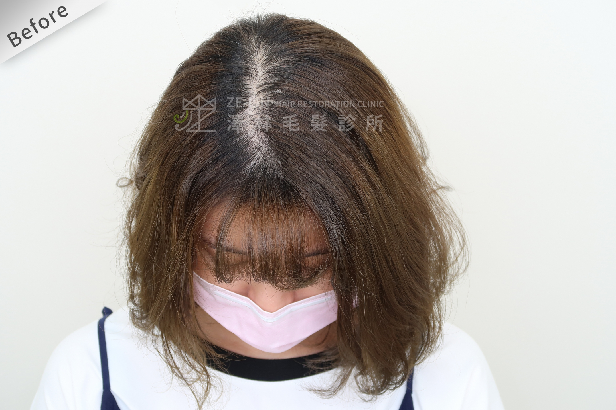 PRP自體生長因子育髮治療女生雄性禿改善頭頂看到頭皮術前(2)