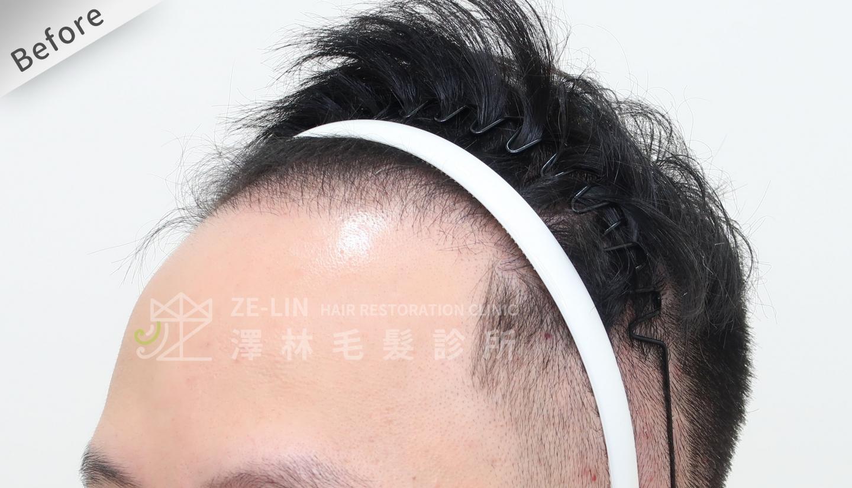 M型禿植髮案例FUE高密度植髮心得推薦-植髮專家澤林毛髮診所謝宗廷醫師-雄性禿治療(柔沛)-術前4-2