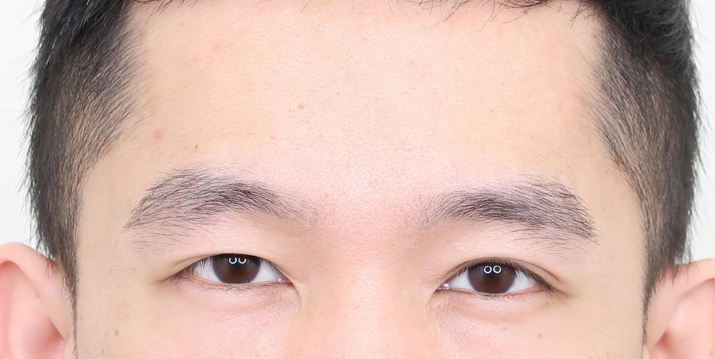 植眉推薦澤林毛髮診所謝宗廷醫師-眉頭稀疏斷眉紋眉繡眉飄眉-術後3-1