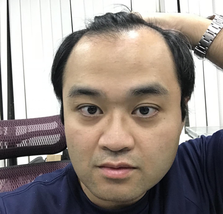 M型禿植髮案例心得推薦-植髮專家澤林毛髮診所謝宗廷醫師-合併使用柔沛-術前1-1