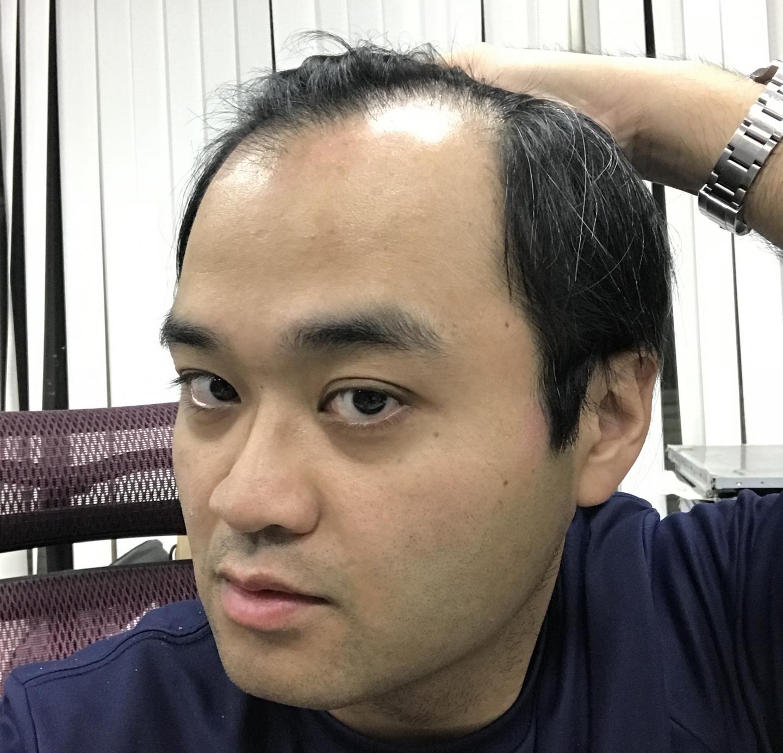 M型禿植髮FUE高密度植髮心得推薦-植髮專家澤林毛髮診所謝宗廷醫師-合併使用柔沛-術前1-2