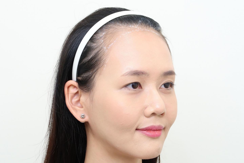 [女性植髮]高額頭女性髮際線免剃FUE植髮-美型髮際線推薦澤林毛髮診所謝宗廷醫師-術前1-2