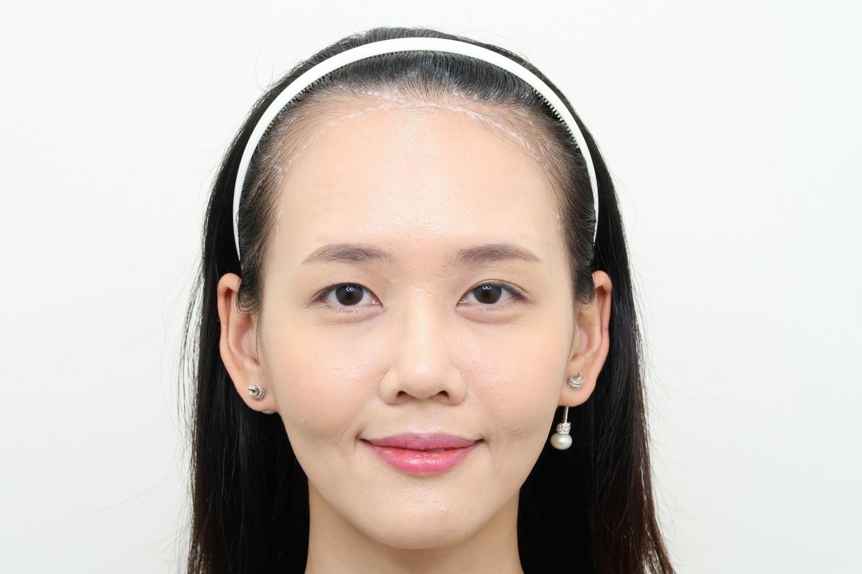 [女性植髮]高額頭女性髮際線免剃FUE植髮-美型髮際線推薦澤林毛髮診所謝宗廷醫師-術前1-1