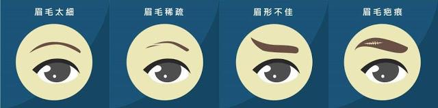 誰適合植眉手術