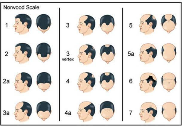 雄性禿治療與程度分級