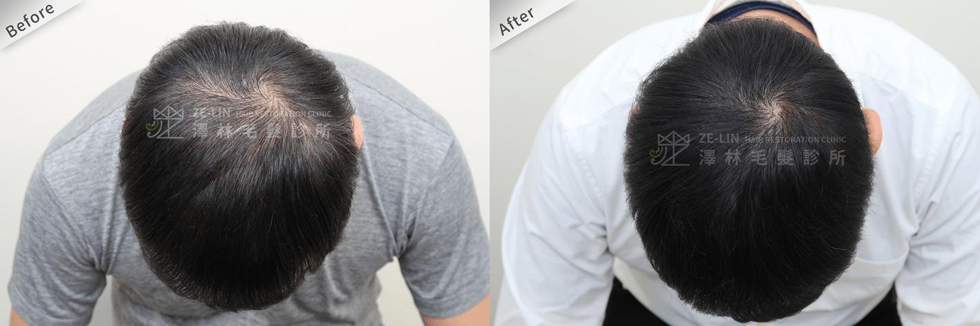 雄性禿治療方法:育髮治療