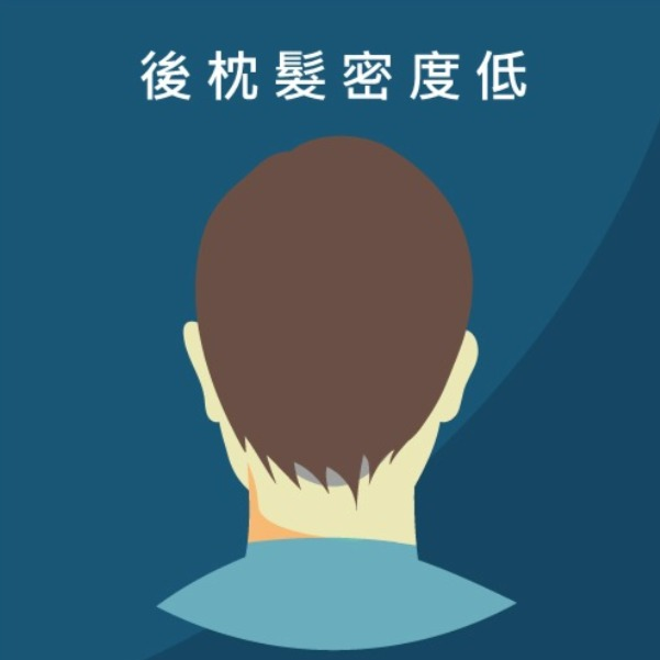 FUT植髮手術的缺點(後枕部頭髮密度低)
