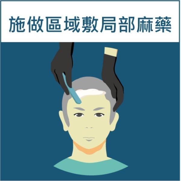 SMP(Scalpmicropigmentation)擬真髮頭皮微點染色操作步驟:局部敷麻藥